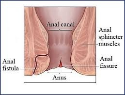 anal fistula | anal fistula treatment in chennai | best hospital for fistula treatment in chennai