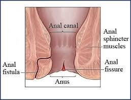 anal fistula | anal fistula treatment in chennai | best hospital for fistula treatment in chennai