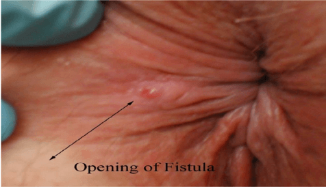 Opening of Anal Fistula - Needs surgery