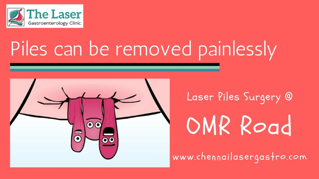 Piles treatment in OMR road