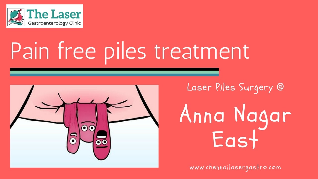 Piles treatment in anna nagar east