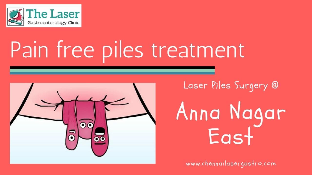 Piles treatment in anna nagar east