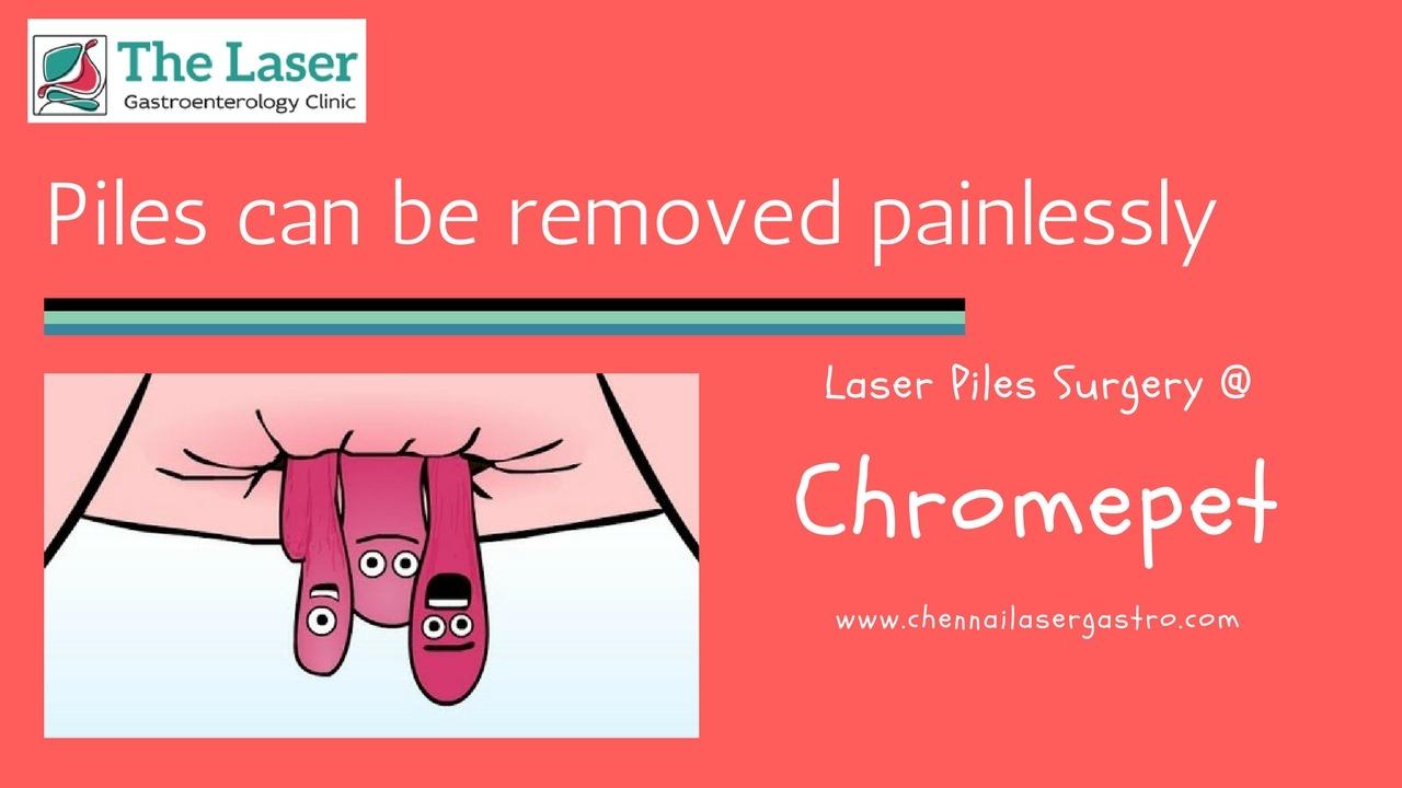 Piles treatment in chromepet