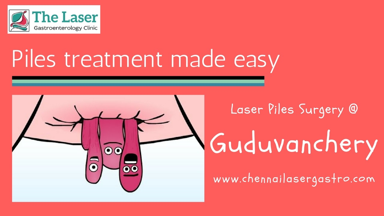 Piles treatment in guduvanchery