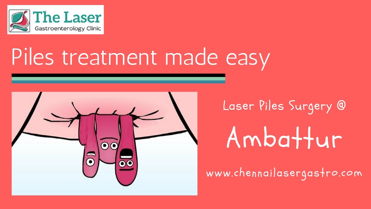 Piles doctor in Ambattur