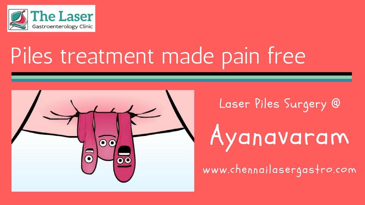 Piles treatment in ayanavaram