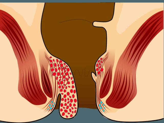 piles treatment in kerala