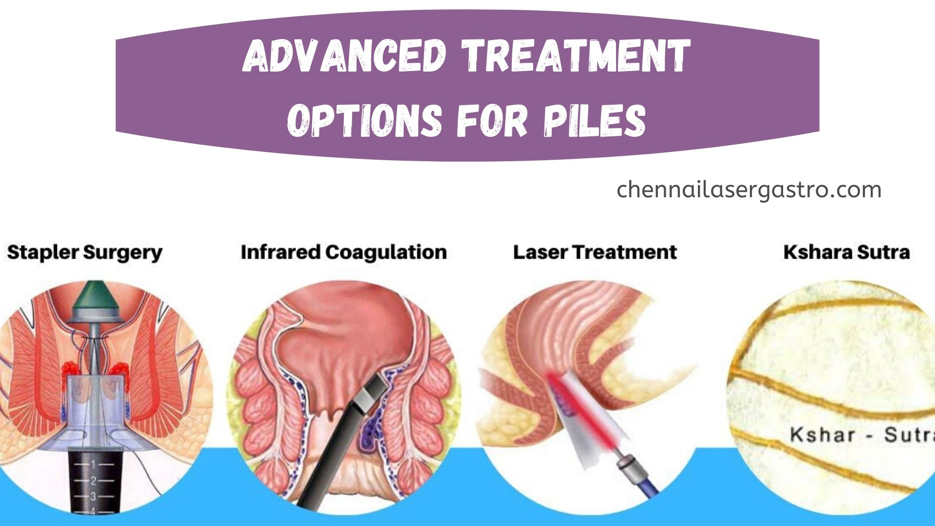 advanced treatment for piles